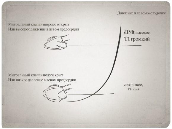 Громкость_Т1_МИТР_клап