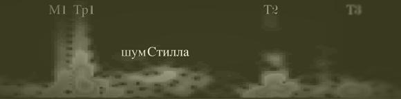 Т1_норма_расщ_монохром