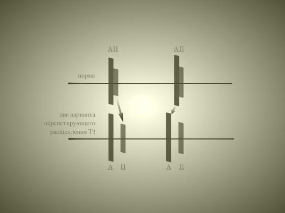 Два варианта персистирующего расщепления второго тона: запаздывание пульмонального компонента П и более раннее появление аортального компонента А. Конечно, возможна и комбинация этих вариантов.