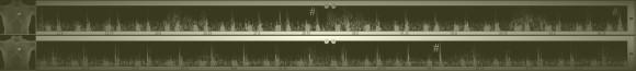 Та же пациентка, запись на следующий день. Периодически синусовый ритм подавляет идиовентрикулярный, комплекс QRS становится узким и нормальным, широкое персистирующее расщепление второго тона исчезает (обратите внимание на второй тон, помеченный знаком #).