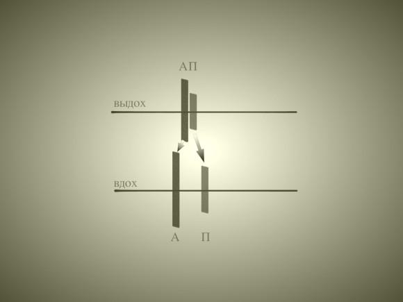 Персистирующее расщепление второго тона. Первый идет аортальный компонент А, за ним - пульмональный П. Второй тон расщеплен и на вдохе, и на выдохе. На вдохе интервал расщепления увеличивается. Расщепление на вдохе обычно шире, чем в норме.