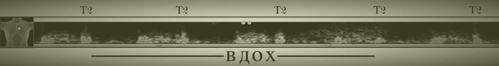 Аорт_ст_Т2_парадокс_винт