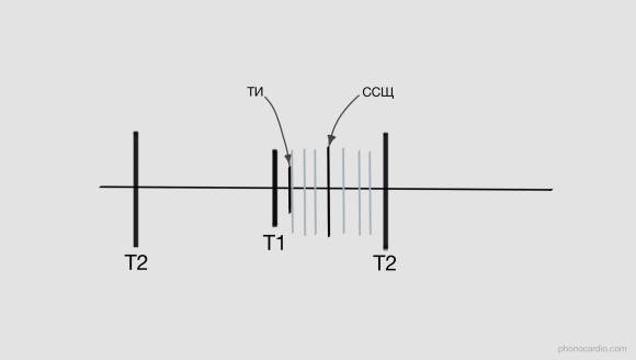 ТИ - тон изгнания ССЩ - среднесистолический щелчок или тон, не связанный с изгнанием крови. Это один из симптомов пролапса митрального клапана. Часто щелчков нескольколько и локализоваться они могут не только в середине систолы (варианты показаны бледным тоном).