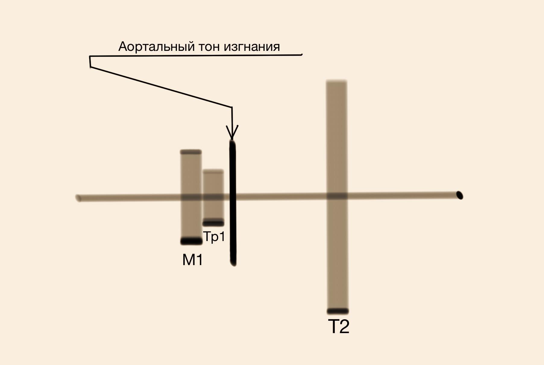 Клапан Бикуспидальный