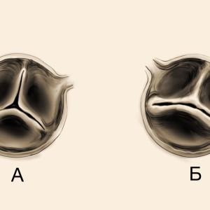 Аортальный тон изгнания и двустворчатый аортальный клапан