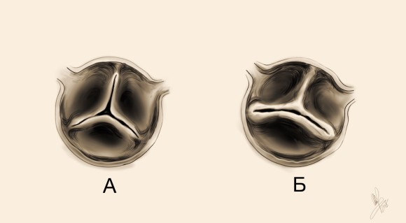 aortic_valve3