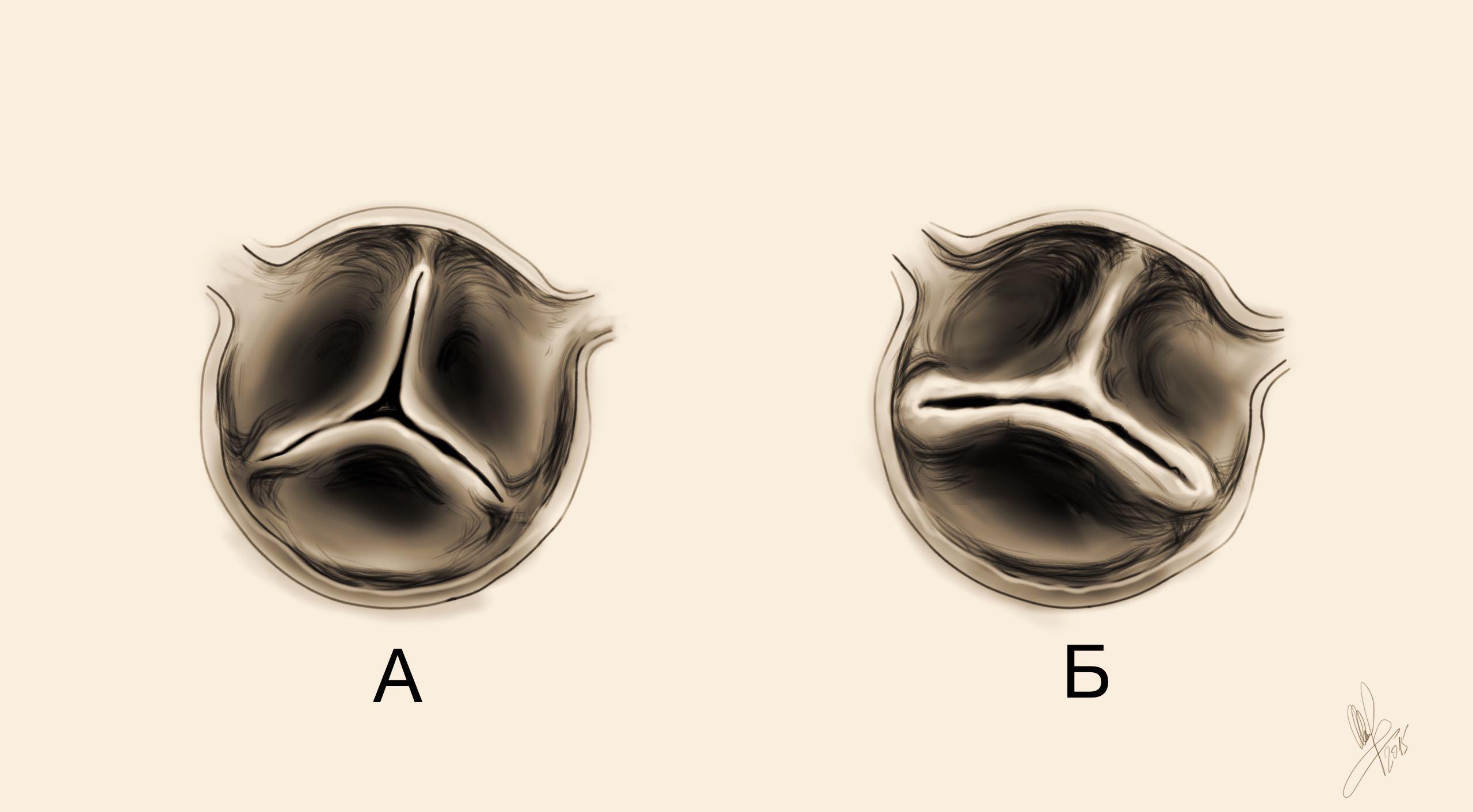 Аортальный тон изгнания и двустворчатый аортальный клапан | Стетоскоп