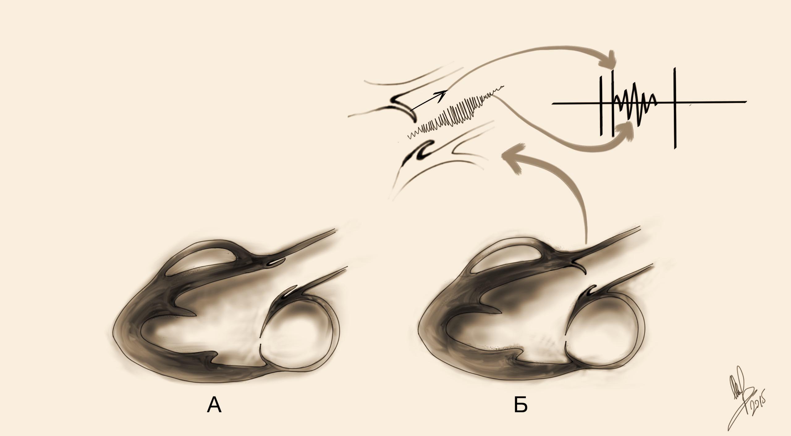 Клапан Аортальный