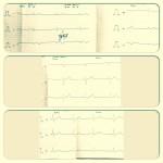 Четвертый сердечный тон и диагностика инфаркта миокарда