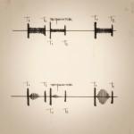 Систолические шумы: подход AUBREY LEATHAM