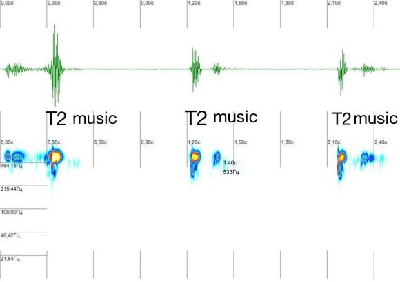 diastolic_music