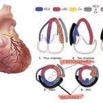 Pericarditis epistenocardica, показательнее случая не бывает