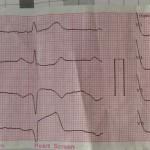 Не частое, но драматичное осложнение ИМ: разрыв межжелудочковой перегородки